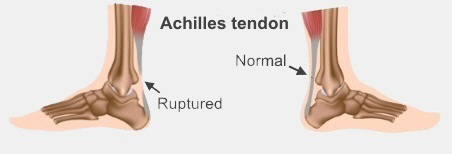 On the left, a gap shows where an Achilles tendon has ruptured. On the right a normal tendon shows no gap