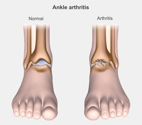 A normal ankle with smooth surfaces and a clear space between the bones. An arthritic ankle with damaged surfaces and bits of crumbling bone