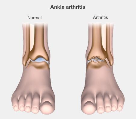arthritis treatment nz