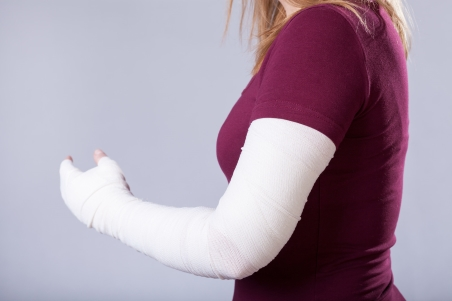 Full arm cast with arm bent, stabilising a broken elbow