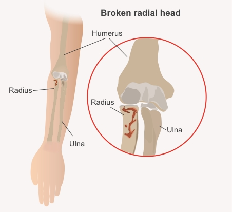 Broken radial head