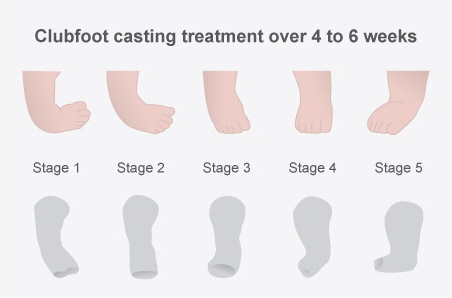 Clubfoot casting treatment lasts for 4 to 6 weeks and gradually changes the angle of the foot, with five different casts