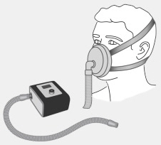 CPAP face mask