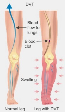 Symptoms of DVT include swelling and pain in the lower leg
