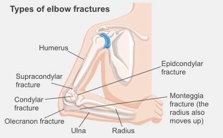 Types of elbow fractures include supracondylar fractures, condylar fractures, olecranon fractures, eipcondylar fractures, and monteggia fractures
