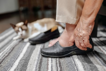 An older woman with swollen feet putting on shoes