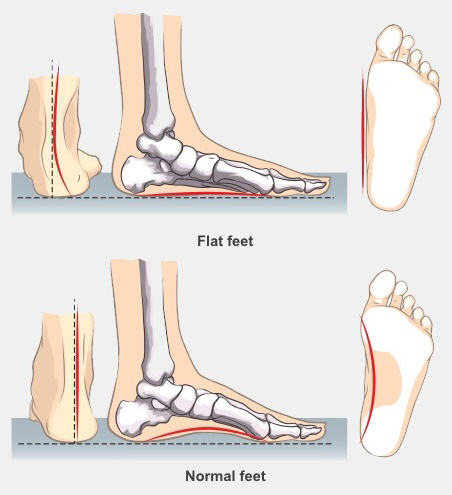Flat feet show a flat sole and a curve in your ankle when viewed from behind. Normal feet below show an arched sole and a straight ankle when viewed from behind