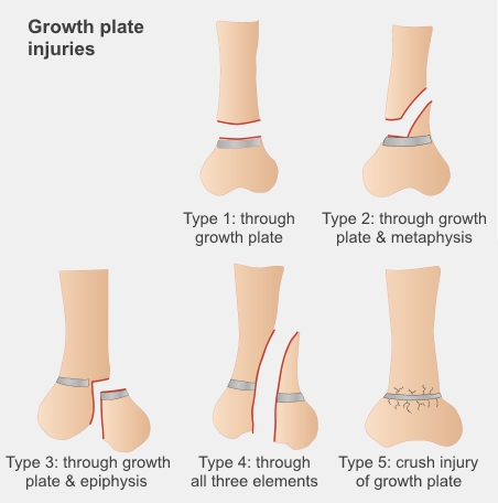 Five types of growth plate injuries. They can be through the growth plate, through the growth plate and long part of the bone, through the growth plate and end of bone, through all three parts, or crush injuries