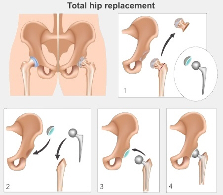 Four steps of a hip replacement. Diseased bone is cut out. Metal ball joint is inserted into femur and metal socket is put in hip bone. The two are then brought together to reform the joint.