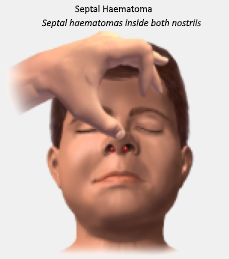 Image showing a septal haematoma in both nostrils