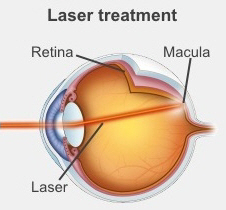 Laser treatment seals leaking blood vessels in your retina.