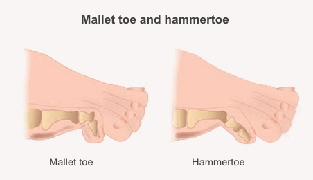 A mallet toe bends at the joint between the top and second bone. A hammertoe bends at the joint between the second and third bone.