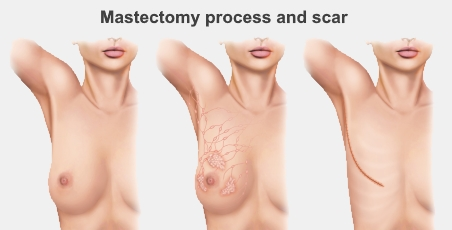 mastectomy process