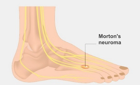 One of the most common sites of Morton's neuroma, at the base of the fourth toe