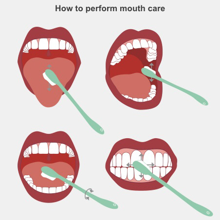 How to perform mouth care