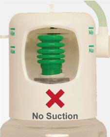 No-suction