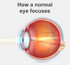 In a normal eye, the lens bends light to focus it onto the retina
