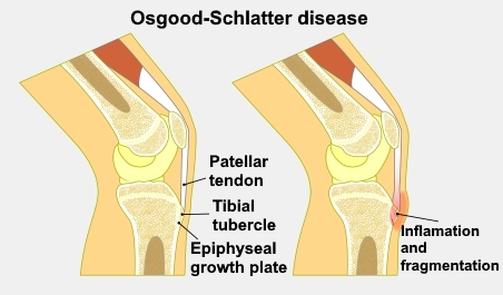 An illustration showing the anatomy of the knee and where inflammation occurs in Osgood-Schlatter disease.