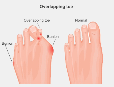 Foot with overlapping second toe, which crosses over the big toe, compared with a normal foot. There are also bunions on the foot with an overlapping toe