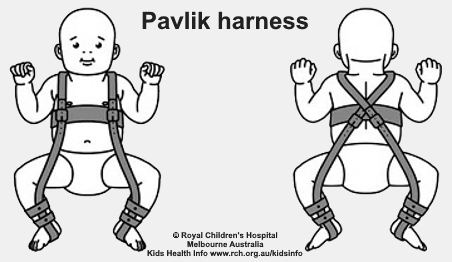 Pavlik harness, showing how it holds a baby's hips with their legs apart