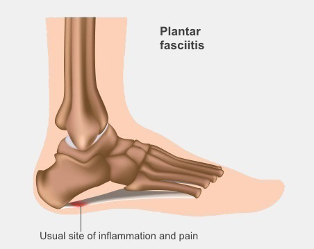 The usual site of inflammation and pain in plantar fasciitis, just in front of the heel