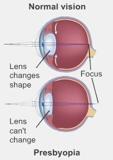 In young healthy eyes the lens changes shape to focus light onto the retina. In presbyopia this doesn't happen
