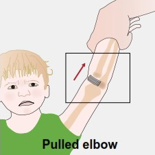 Parent pulling a child's arm upwards, causing a pulled elbow