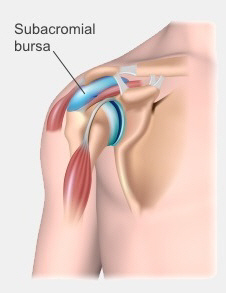The position of the subacromial bursa, between your acromion and the muscles of your rotator cuff