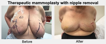 Therapeutic mammoplasty