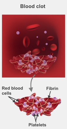 A blood clot is made up of red blood cells, fibrin, and platelets